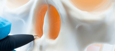 tabique nasal desviado
